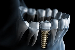 Diagram of an integrated dental implant in Fort Worth