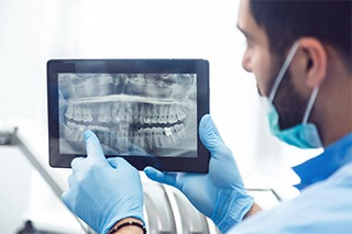 Implant dentist in Fort Worth pointing at a digital X-ray
