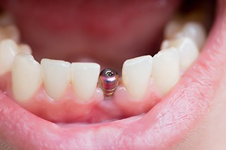 Closeup of an integrated, uncovered dental implant inside a mouth.