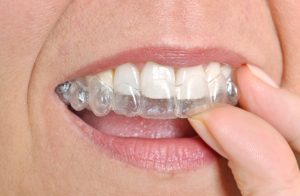 invisalign in fort worth tx is more efficient