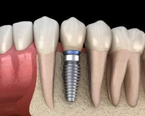 Model of bone density and dental implant success.