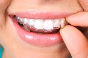 Invisalign in Fort Worth is easier to clean than other straightening treatments.