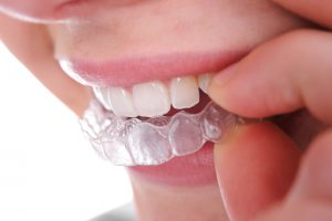 Learn why Invisalign from your dentist in Fort Worth is the optimal solution to straighten your teeth invisibly.